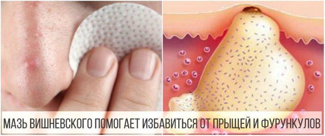 Мазь Вишневского – аналоги